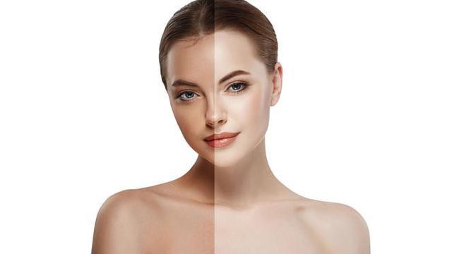 pencegahan dengan melindungi diri dari sinar UV yang berbahaya